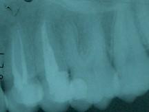 Endodoncia Premolares Superiores