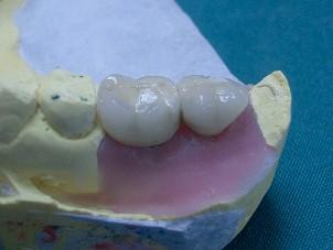 Implantes 3