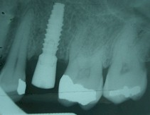 Implantes 7
