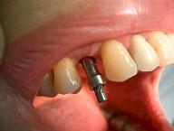 Implantes 8