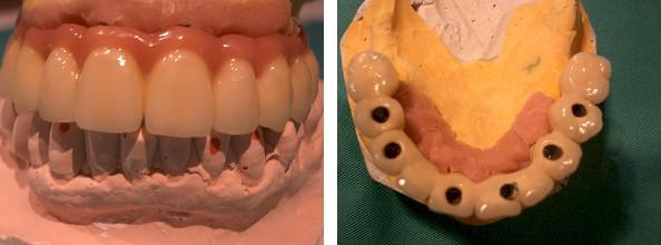 Prótesis sobre implantes 1